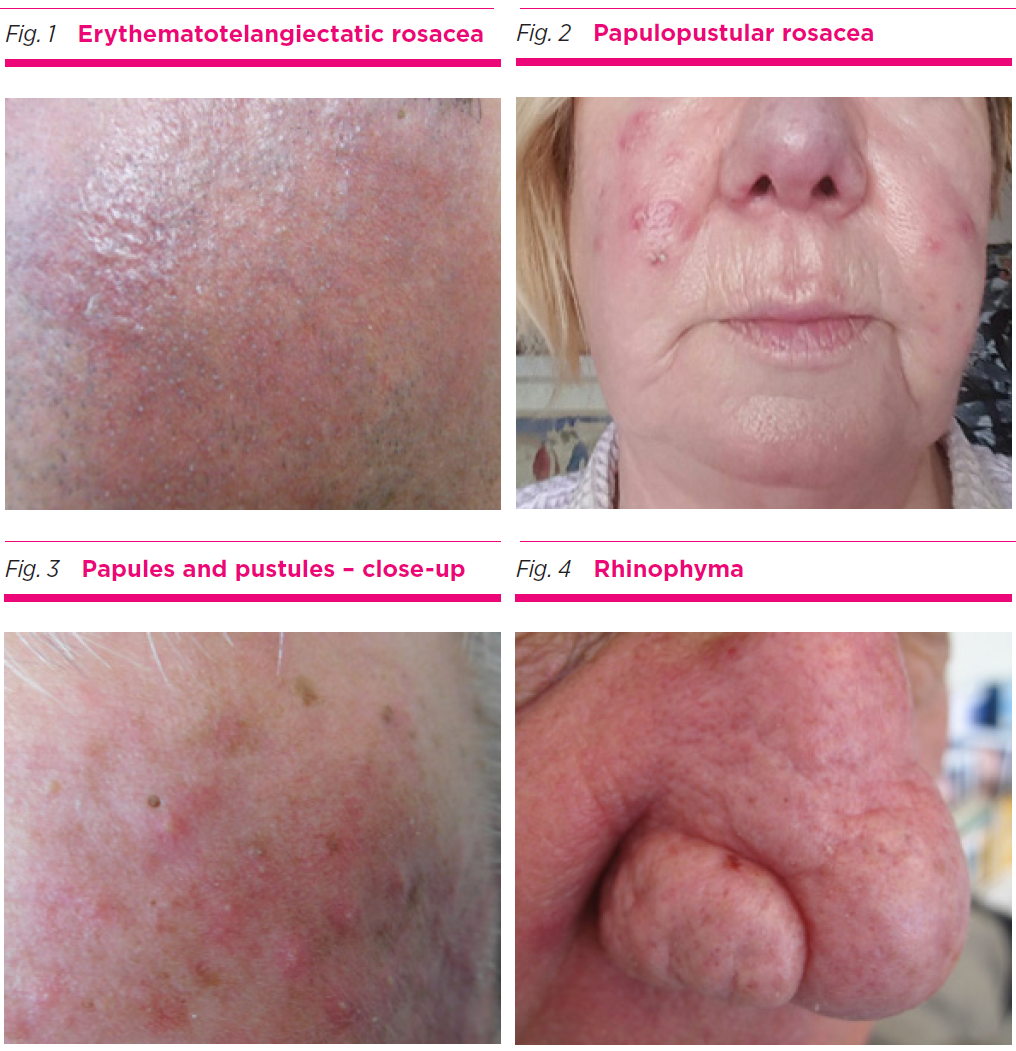 An Update On The Treatment Of Rosacea Australian Prescriber