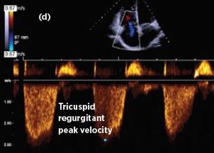 The role of cardiac imaging in clinical practice - NPS
