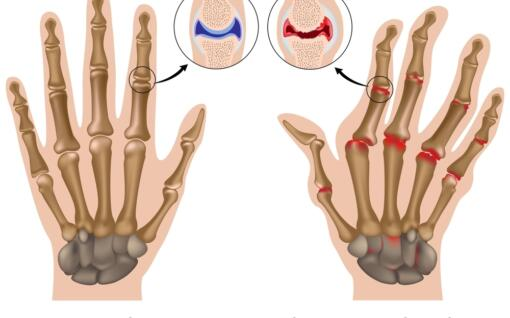 Managing Rheumatoid Arthritis Nps Medicinewise