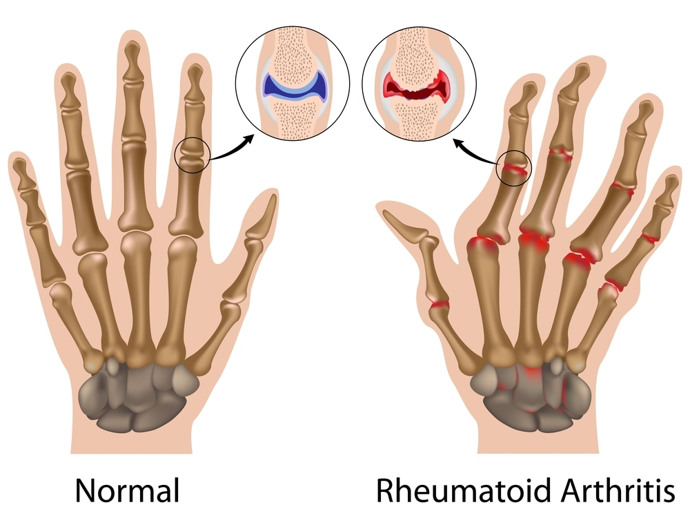 image of hands, in x-ray view, showing normal bones and joints vs bones and joints damaged by rheumatoid arthritis
