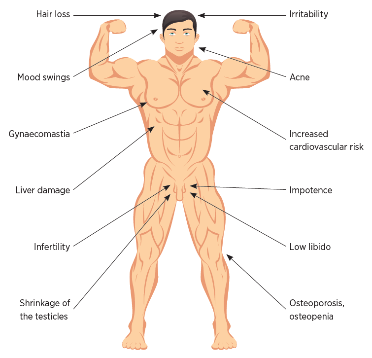 Androgenic adverse effects in men
